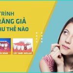 Quy trình trồng răng giả