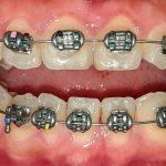 Niềng răng khớp cắn hở Nha Khoa LINH XUÂN
