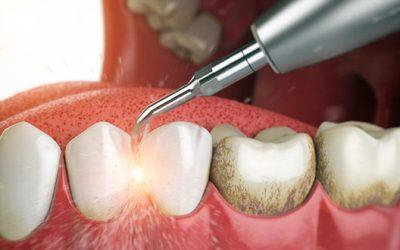 Cạo vôi răng siêu âm tại Nha Khoa LINH XUÂN