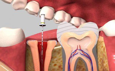 Điều trị rút tủy răng