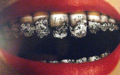 Tẩy trắng răng hút thuốc có sao không