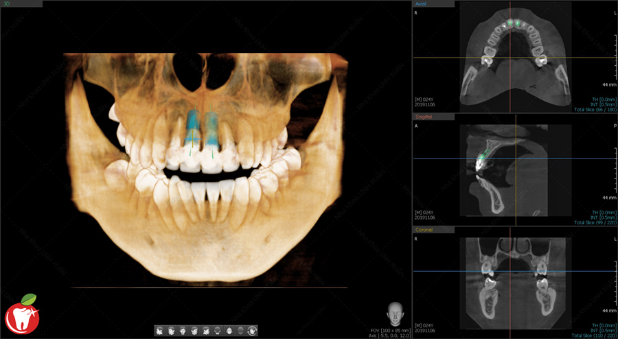 CBCT Cấy Ghép Implant