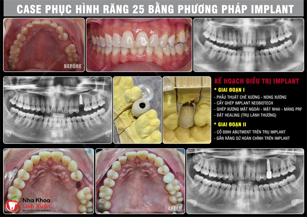 Cấy ghép Implant răng 25